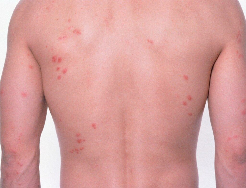 How To Differentiate Bed Bugs VS Mosquito Bites